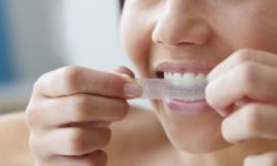 Bring Back The Confidence With Teeth Whitening Kits