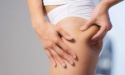 Know Why You Should Get A Velashape Cellulite Treatment Done