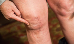 Get A Knee Replacement Surgery From The Best Surgeons In India