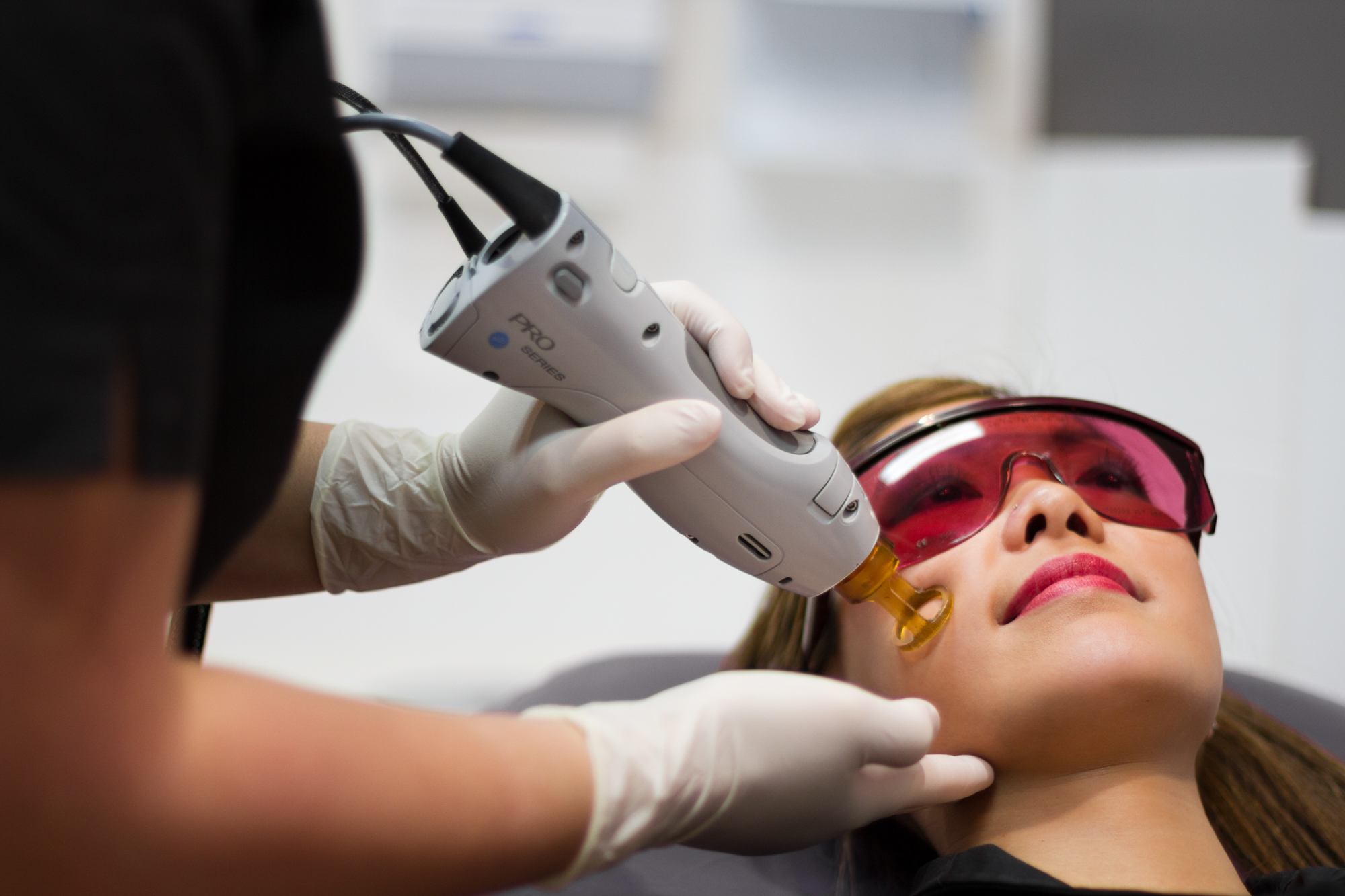 Laser Hair Removal The Notable Side Effects